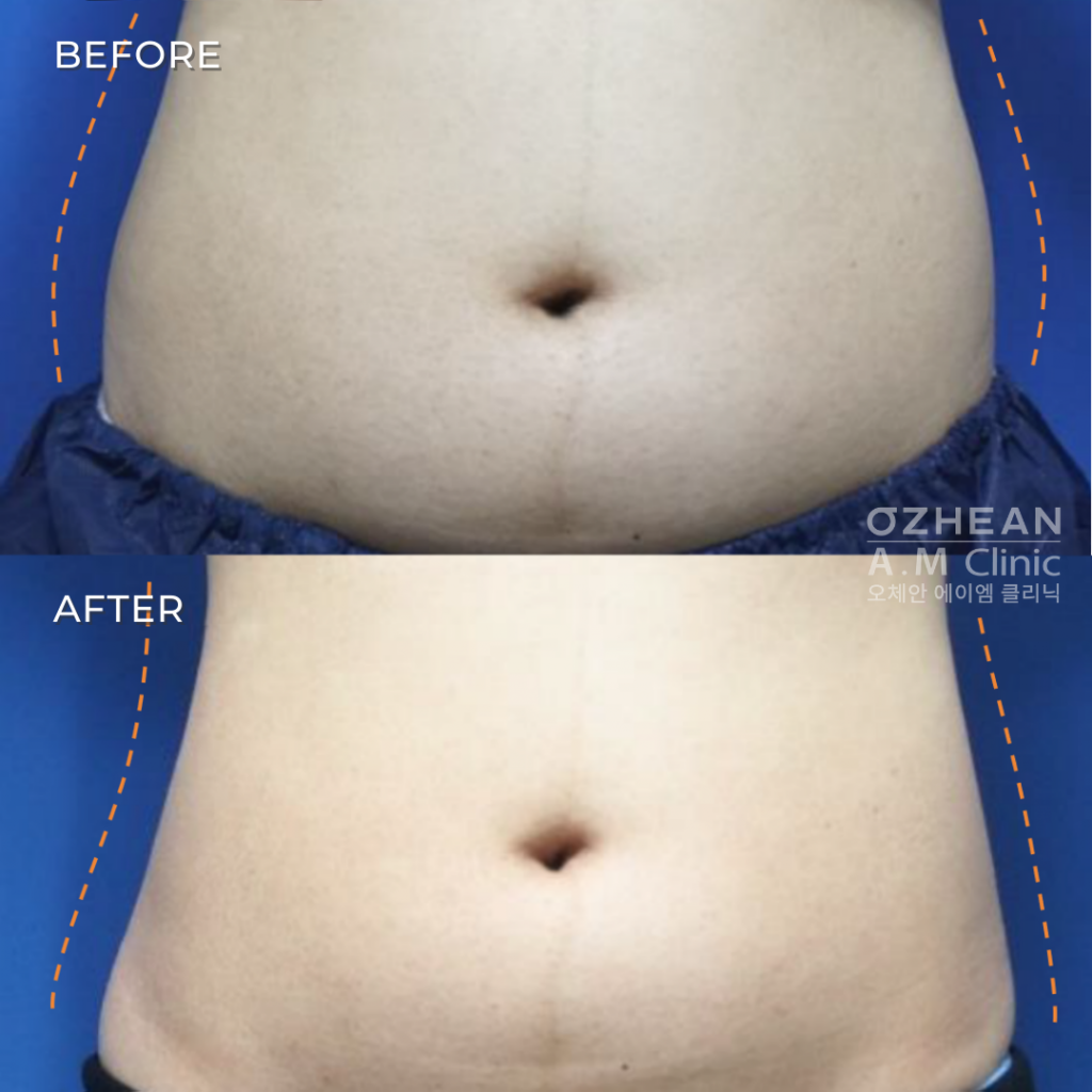 before and after laser lipolysis slimming treatment of abdomen mid section area body shaping slimming treatment with le shape