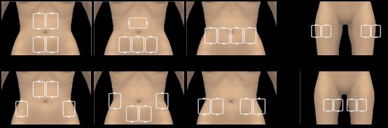 parts division for le shape treatment